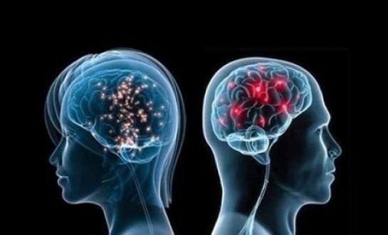 Aşırı kilo, beyinde küçülmeye neden olabilir