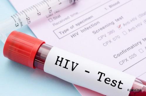 Sağlık Bakanlığı HIV'li hasta için soruşturma başlattı